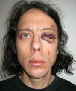 Dan Park misshandlad av vänstern